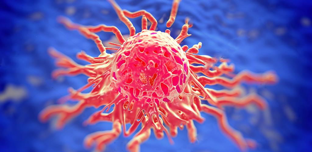 Kanceri mitrës – parandalimi dhe trajtimi natyral