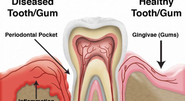 Sëmundjet e mishrave të dhëmbëve